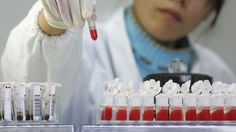 A 44-year-old man in England is possibly the first person in history to be cured of HIV. Scientists working on an experimental new therapy say that the virus is now completely undetectable in his blood.