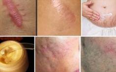 Elimine cicatrizes de qualquer parte do seu corpo em menos de um mês