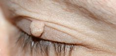There are some best ways to remove skin tags which are relatively fast, simple and also painless.