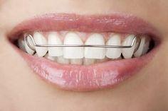 22 benefícios do bicarbonato de sódio. Limpe produtos de higiene bucal