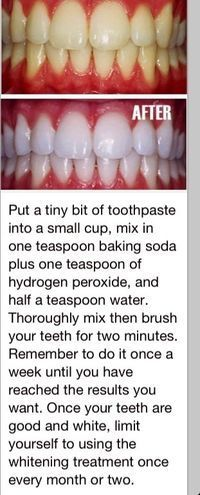 White teeth, this actually worked!!