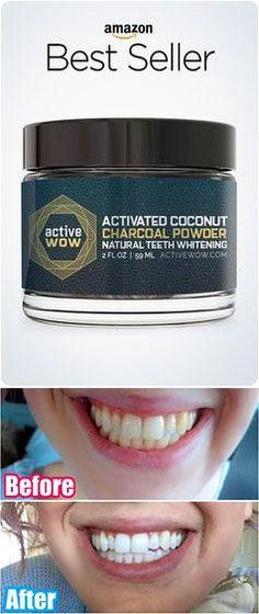 Teeth Whitening Remedies, Charcoal Teeth Whitening, Natural Teeth Whitening, Teeth Care, Skin Care, Diy Beauty, Beauty Hacks, Beauty 101, Beauty Ideas