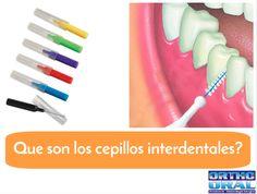que es un cepillo interproximal