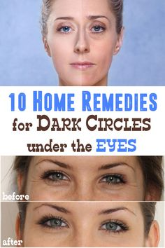 Did you know that you can get rid of dark circles in no time with just 2 ingredients from your own home? Cucumber and potatoes can be of great help!
