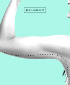 From Ow, to Wow!  Post-surgery patients share their  experience of their Arm Lift aka Brachioplasty procedure