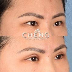"""Our lovely patient here is 3️⃣ months post op from her Asian Upper Eyelid Surgery 👁 and looking fantastic! 💃🏽  Her goals: 👇🏽 Reduce skin laxity ⚖️ Create more symmetry as her left eyelid crease naturally sat higher than the right 👁 A larger, more """"westernized"""" crease  She is thrilled with her results and they'll only get better from here! Swelling is still present even up to 6 months. 👏🏽 Double Eyelid, Eyelid Surgery, Plastic Surgery, 6 Months, Larger, Asian, Goals, Create, Face"""
