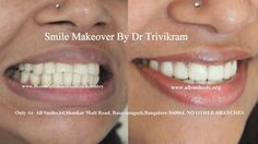 Cosmetic dentistry /Smile makeover provides more than just a beautiful smile and a healthy mouth. Dr Trivikram(Dr Vikram), an expert cosmetic dentist in Bangalore offers smile makeovers with dental veneers/crowns. An improved smile can boost a person's self-image, making them more confident in their daily lives. Visit : www.allsmilesdc.org #Smilemakeover #Cosmeticdentistry #Bangalore #Smiledesigning