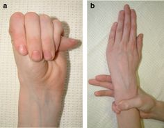 European Journal of Human Genetics - Figure 3 for article: Marfan syndrome: clinical diagnosis and management