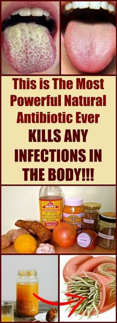 You will be amazed to know! This is The Most Powerful Natural Antibiotic Ever – Kills Any Infections in The Body #infections #naturalRemedies #healthyfood #health