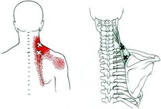 upper trap trigger points + pain referral pattern