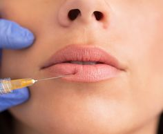 What Are Lip Fillers, And Are They Worth It?