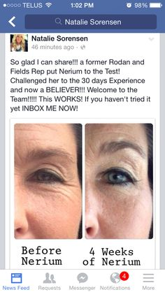 It astounds me how effective NERIUM is ... Try it! 30 day money-back guarantee soooo nothing to lose, but wrinkles! Isn't that brilliant? http://beautylifestyle.theneriumlookcanada.com/cp/5225