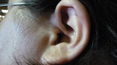 Tinnitus can wreak havoc on one's life. Though it is not an actual condition itself, it is a sign that another problem exists. If you are bothered by symptoms and are in desperate need of a tinnitus treatment, read on. Sound therapy is perhaps the most. Tinnitus Symptoms, Cleaning Your Ears, Learning Spanish, Spanish Class, Natural Treatments, Natural Remedies, Medical Conditions, Acupuncture, Annoyed