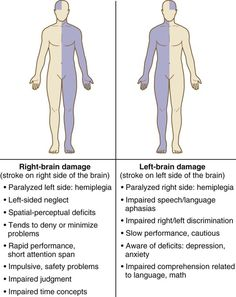 Right Brain Damage vs. Left Brain Damage You are in the right place about business career ideas Here we offer you the most beautiful pictures about the new career ideas you are looking for. Nursing Degree, Nursing Career, Nursing Tips, Nursing Programs, Rn Programs, Ob Nursing, Nursing School Notes, Medical School, Nursing Schools