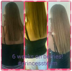 Check Out My Sam S Incredible Hair Growth In Just 6 Weeks On The Berries Capsules Salli Murray Juice Plus