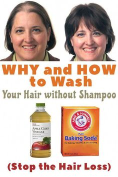 Baking Soda Shampoo: It will Make Your Hair Develop Like It can be Magic! - Baking Soda Shampoo: It will Make Your Hair Develop Like It can be Magic! – Baking Soda Shampoo: It will Make Your Hair Develop Like It can be Magic! Hair Without Shampoo, Best Hair Loss Shampoo, Biotin For Hair Loss, Shampoo For Curly Hair, Biotin Hair, Why Hair Loss, Hair Loss Cure, Oil For Hair Loss, Hair Loss Remedies