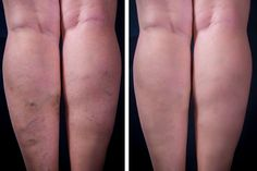 Pain Treatment Specialists specializing in treatment for varicose veins, spider veins treatment to help you highly trained doctors in New York, New Jersey and san Diego. Leg Cramps Treatment, Ipl Photofacial, Looks Kim Kardashian, Vein Removal, Best Weight Loss Pills, Circulation Sanguine, Anti Cellulite, Cellulite Workout, Health Tips