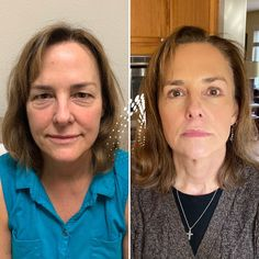 """Cheng Plastic Surgery & Medspa on Instagram: """"Remember Linda?! (If not, check out our """"Linda's Journey"""" highlight ☝🏽) Here she is 4 months healed from her Upper & Lower Blepharoplasty,…"""" Eyelid Surgery, 4 Months, Plastic Surgery, Eyebrows, Highlights, Journey, Healing, Check, Instagram"""