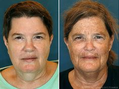 [CasaGiardino]  Study of identical twins reveals how bad habits can age skin. Identical twins Jeanne (L.) and Susan (R.) no longer look  exactly alike. Susan smoked for many years and is an admitted sun  worshipper, habits Jeanne does not share (Source, OP)