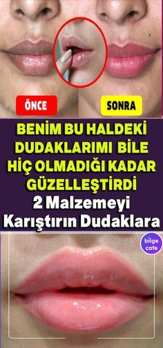 Dudağı Pembeleştirip, Güzelleştirme With this idea your lips will be more beautiful than ever. Beauty Skin, Hair Beauty, Honey Face, Perfume, Skin Makeup, Face Care, Natural Skin Care, Health And Wellness, Your Lips