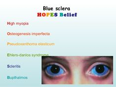 Mnemonics of Ophthalmology Ophthalmi Osteogenesis Imperfecta, Eye Anatomy, Medical Mnemonics, Eye Center, Ehlers Danlos Syndrome, Eyes Problems, Study Notes, Medicine, Education