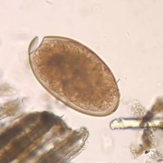 Fasciola egg (operculum, 100 um = BIG)