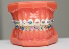 Ưu điểm của niềng răng mắc càu tự buộc - NIỀNG RĂNG CÓ ĐAU KHÔNG