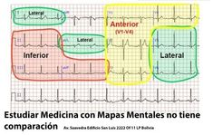 ekg interpretation made easy - ekg interpretation made easy . ekg interpretation made easy heart Nursing Tips, Nursing Notes, Bola Medicinal, Ekg Interpretation, Ecg, Np School, Nursing Information, Critical Care Nursing, Cardiac Nursing