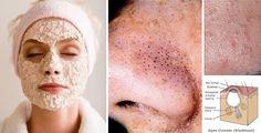 Maschere esfolianti contro punti neri e brufoli   Rimedio Naturale