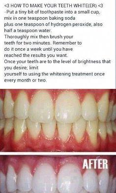 Teeth Nails: Whiten teeth at home. I hope it w… – Oral Health Care Teeth Nails: Whiten teeth at home. I hope it w… Teeth Nails: Whiten teeth at home. I hope it w… Teeth Whitening Remedies, Natural Teeth Whitening, Skin Whitening, Eye Stye Remedies, Natural Home Remedies, Health Remedies, Baking Soda Hydrogen Peroxide, Girl Faces, Beauty Hacks