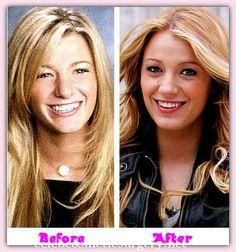 Blake Lively Plastic Surgery - Celeb Cosmetic Surgery