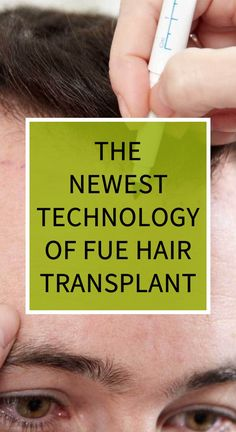 The Newest Technology of FUE Hair Transplant
