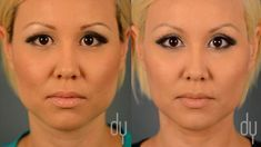 Yoo, discusses BOTOX® for masseter reduction. Also known as jaw reduction with BOTOX®, or the V-line procedure. Plastic Surgery Video, Botox Before And After, Eyelid Lift, Lymphatic Drainage Massage, Cellulite Scrub, Best Face Mask, Liposuction, Jawline, Mascaras