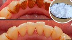 Trápi vás nepríjemný zubný kameň? Zbavte sa ho v dvoch jednoduchých krokoch | MegaZdravie.sk