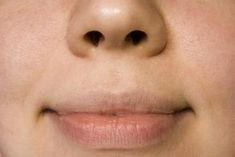 How to Eliminate Wrinkles Above the Top Lip