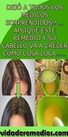 Your hair will grow madly and your vision will be eagle – Al … – Nature Beauty Care, Beauty Hacks, Hair Beauty, Bella Beauty, Cabello Hair, Face Tips, Hair Loss Remedies, Hairstyles For School, Natural Cosmetics