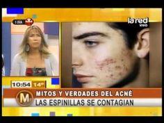 Mitos y verdades del acné: Si reviento una espinilla ajena, ¿puedo pegarme al acné? - http://solucionparaelacne.org/blog/mitos-y-verdades-del-acne-si-reviento-una-espinilla-ajena-puedo-pegarme-al-acne/