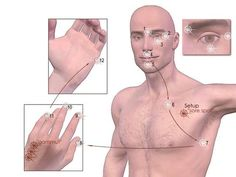 """Emotional Freedom Technique (EFT) has been referred to as """"psychological acupressure"""". In acupuncture and acupressure, energy channels are recognized throughout your body. Alternative Health, Alternative Medicine, Point Acupuncture, Coaching, Eft Tapping, Physical Pain, Emotional Healing, Emotional Stress, Natural Healing"""