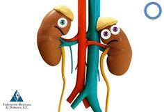 Diabetes e insuficiencia renal crónica