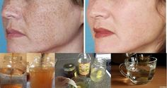 Get Rid Of The Stains, Spots, And Hyperpigmentation With This Natural Recipe With 2 Ingredients! - Myeva for Healthcare, Skin care & Beauty Getting Rid Of Freckles, Get Rid Of Spots, Les Rides, Dark Spots, Brown Spots, Health And Beauty, The Help, Beauty Hacks, Hair Growth
