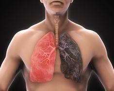10 nejlepších přírodních způsobů jak vyčistit a detoxikovat plíce