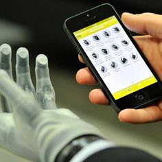 This prosthetic hand is controlled with an iOS app.