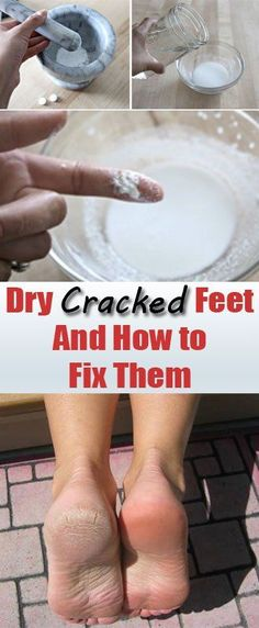 Heal Your Cracked Feet Fast With This Incredible Homemade Paste