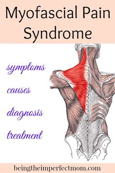 Myofascial Pain Syndrome is similar to fibromyalgia, but the causes of MPS are known. The symptoms and treatments are very similar to fibromyalgia. http://www.beingtheimperfectmom.com/myofascial-pain-syndrome/ #MyofascialpainSybndrome #MPS #chronicpain