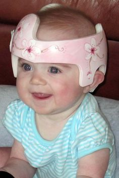 This baby looks just like Piper! Baby Helmet, Helmet Head, Doc Band Wraps, Kids Wraps, Helmet Design, Design Girl, Baby Health, Our Baby, Baby Patterns