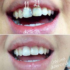Художественная реставрация передних зубов. #dentist #dentalwork #fillings #dentalart #dentistry #dentalclinic #32teeth #smile #whiteteeth by dr.leilaalieva Our General Dentistry Page: http://www.myimagedental.com/services/general-dentistry/ Google My Business: https://plus.google.com/ImageDentalStockton/about Our Yelp Page: http://www.yelp.com/biz/image-dental-stockton-3 Our Facebook Page: https://www.facebook.com/MyImageDental Image Dental 3453 Brookside Road Suite A Stockton CA 95219 (209)…