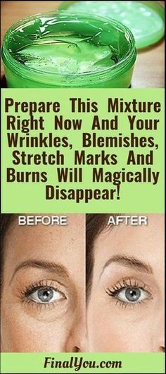 This mixture preparation is very easy! it is 100% natural, your blemishes, stretch marks, wrinkles, and burns will disappear with no side effects at all