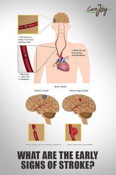 What Are The Early Signs Of Stroke?