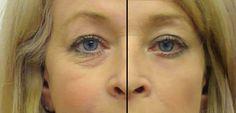 Göz altı morluklarını tedavi etmek için doğal yöntemler.