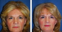 Here's What Facial Training Exercise Techniques Can Yield For Your Face And Throat